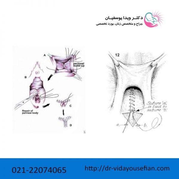تنگ کردن واژن با نخ
